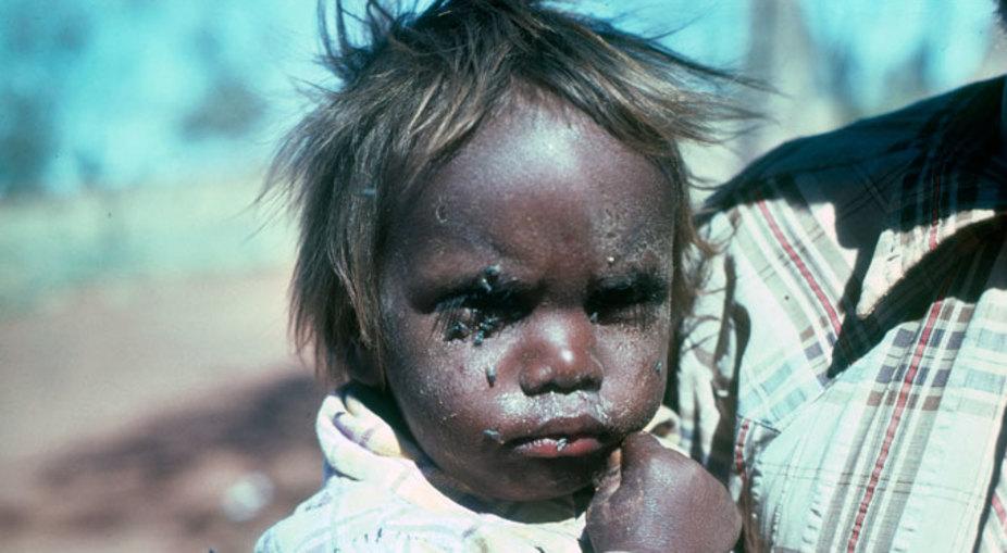 Aboririnal dirty kid 1a CAAMA