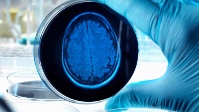 Photo of Alzheimers' disease could be spotted years in advance, research suggests